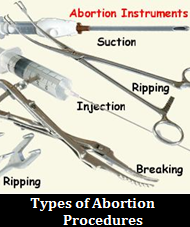 Abortion: Two Sides of the Argument