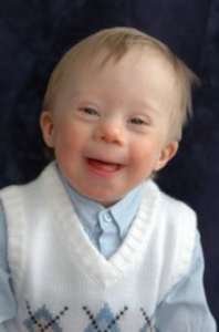 Babies, Disabilities, Condition, Birth, Defect, Abortion, Lethal, Pro-Life, Pro-Choice